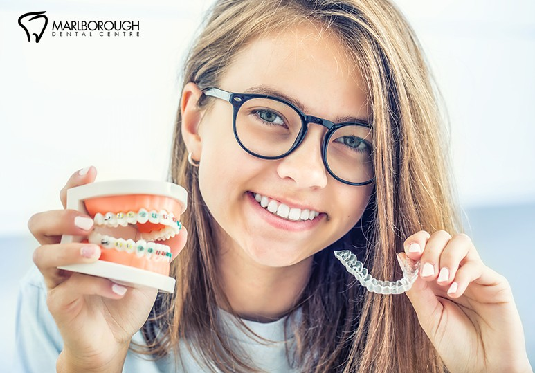 4 Reasons Why Invisalign Trumps Braces
